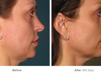 Ultherapy01_Before