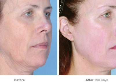 Ultherapy02_Before