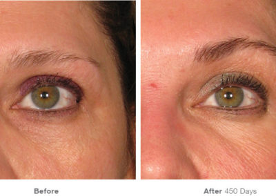 Ultherapy05_Before